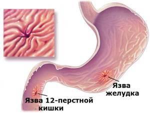 Влияние секса на желудок