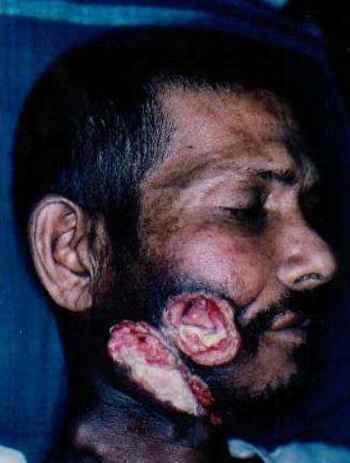 Фото рак щеки последствия курения