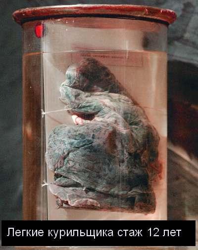 легкие курящего человека фото легкие курящего и не курящего  Легкие курящего человека