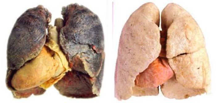 легкие курящего человека фото легкие курящего и не курящего  легкие курильщика жесть фото